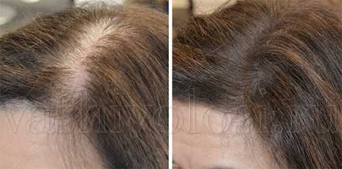 маски для ускорения роста волос с горчицей