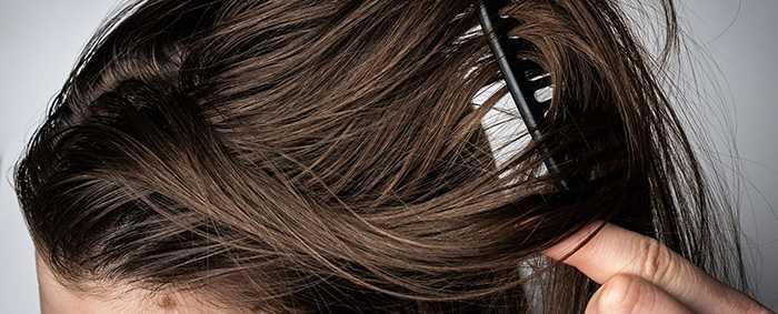 Что делает волосы жирными? Главные причины жирности волос
