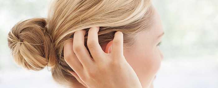 Как избавиться от сухости кожи головы