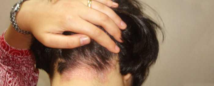 Как лечить псориаз на голове