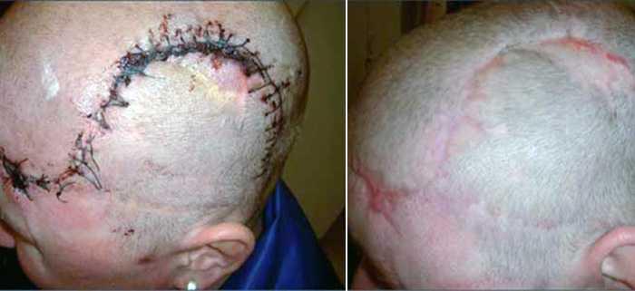 Лечение рубцовой алопеции на коже головы