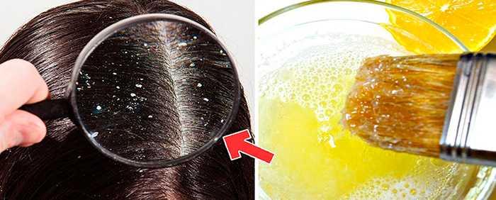 Лучшие маски для волос от перхоти в домашних условиях