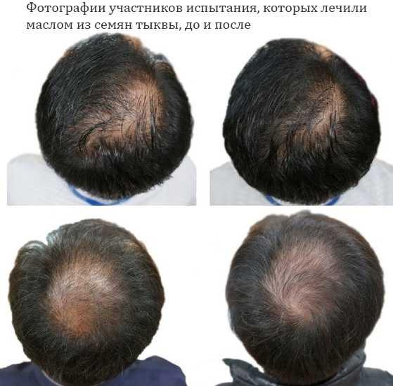 Масло семян тыквы для роста волос