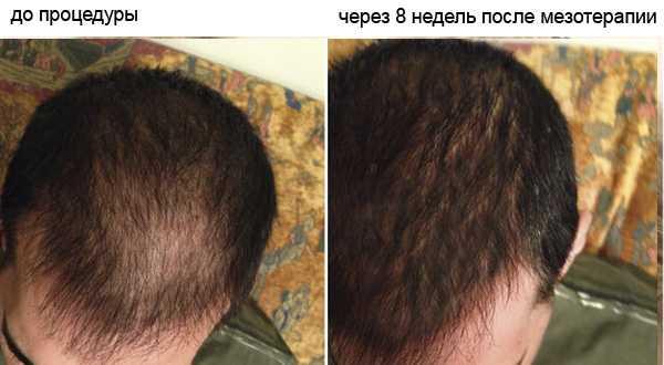 Мезотерапия для роста волос с помощью кислорода