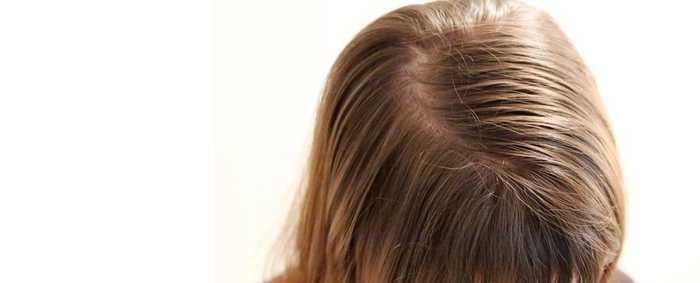 Почему волосы жирные