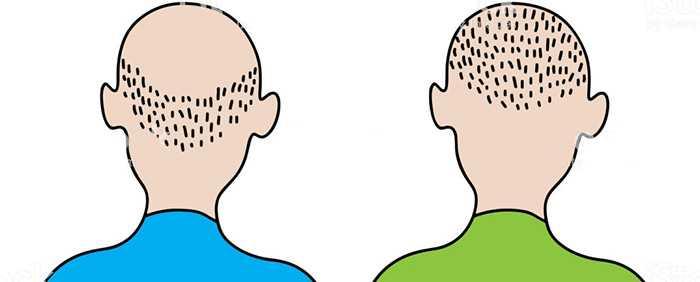 Разница между выпадением волос в 20 и 60 лет