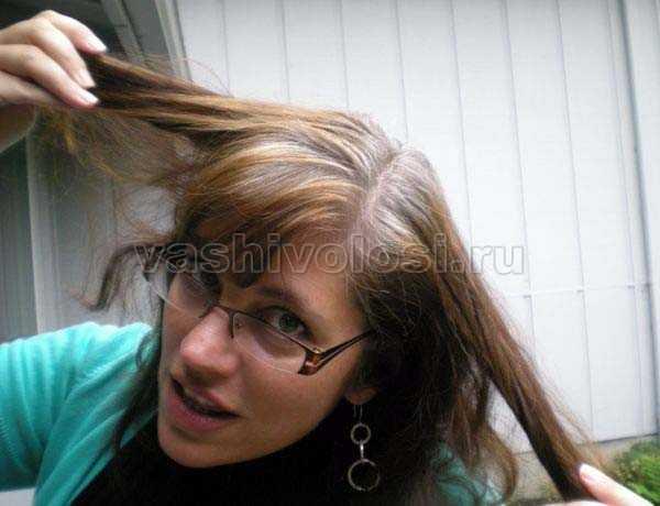 Седые волосы в молодом возрасте