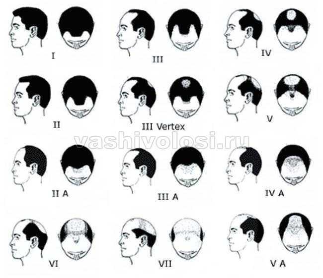 Выпадают волосы у мужчин