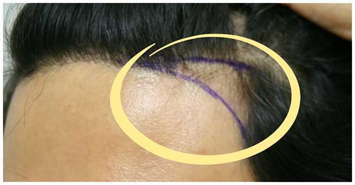 Выпадение волос на висках